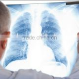medical x-ray film imagers fuji dry thermal film the most popular agfa film for hospital