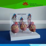 Direct factory supplied human heart disease model