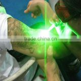 532nm Nd Yag 532nm Green Q Switch Laser Tattoo Removal Laser Machine Hori Naevus Removal