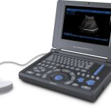 Canyearn A10 Full Digital Laptop Ultrasonic Diagnostic System