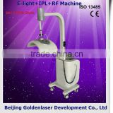 2013 laser tattoo removal slimming machine cavitation E-light+IPL+RF machine rosacea treatment