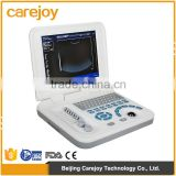 Ultrasonic, Optical, Electronic Equipments Laptop Portable B pc based ultrasound scanner