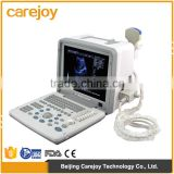 INQUIRY about 12-inch LCD monitor 2 probe connector 1 USB Full Digital LED portable ultrasound scanner for sale