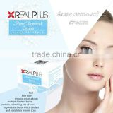 Remove face pimples REAL PLUS laser acne removal machine