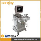 CE ISO approved medical ultrasound machine Full digital imaging technology Trolley Ultrasound Scanner