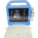 AJ-6100B Easy Operation Mature Technology Long Lifetime Portable LCD Display Ultrasound Scanner