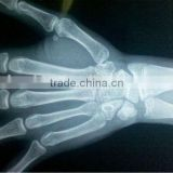 china medical dry film,medical x-ray film, x-ray film digitizer,scrap x-ray film for sale