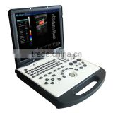 Laptop portable color doppler ultrasound scanner cheap WT-C60 15 inch high resolution LED