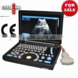 Hot Sale Cheap Price of Medical Handheld/Notebook/Laptop ultrasound machine with convex, linear, vaginal, rectal transducer-