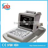 handheld health diagnostic equipment made in China