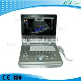 LTC5 portable hand carried laptop color doppler ultrasound machine