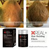 100% good feedback high quality best hair loss treatment by Real plus hair building fibers