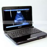 B ultrasound With Screen 10.1 LED portable ultrasound machine price cheaper                                                                                                         Supplier's Choice