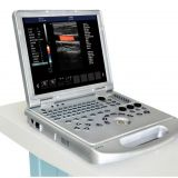 Echo Color Doppler 3D Function Laptop/Notebook Ultrasound