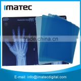 8*10 Inch Medical Dry X-Ray Film For Inkjet Printers                                                                         Quality Choice                                                     Most Popular