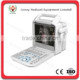 SY-A026 All Digital Color Doppler Guangzhou Sunnymed Ultrasonic machine Ultrasonic Diagnostic System