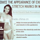 Stretch Mark Prevention Lotion