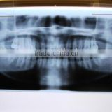 thermal dry film, names of dental instruments, radiography film