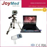 A cheapest Digital Electronic Colposcope with Dell Brand Laptop /video colposcope for vagina