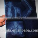 blue film medical x-ray film knd film Kodak film new product film used hospital