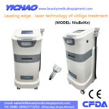 Permanent 308nm UV Laser Vitiligo Psoriasis Cure Medical Treatment Machine