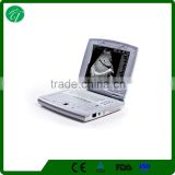 CE approved B mode Fully Digital Portable Ultrasound Scan Machine /scanner for pregnancy