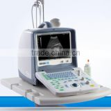15 inch LCD screen mobile 3D color doppler ultrasound machine