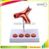 Thrombus Education Biological Teaching Human Body Anatomy Model