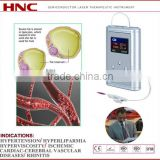 Nasal type portable acupuncture irradiation for rhinitis hypertension treatment, hypertension, diabetes
