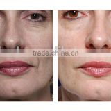 Hyaluron acid injection HA dermal filler for Skin care