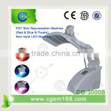 photodynamic therapy for acne treatment beauty machine