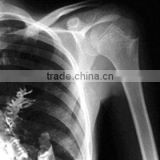 medical x ray equipment film,CT/MRI/DR/CR/DSA film,dry x-ray film,kodak medical x-ray film