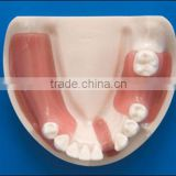 dental equipment teaching implant tooth model standard size teeth model