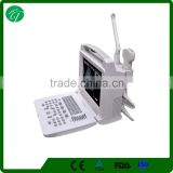 top selling Handheld/portable /laptop doppler 3D ultrasound scanner with excellent image 3018I