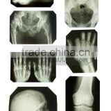 thermal dry image,medical x-ray film agfa,fuji medical x-ray film for cancer medical equipment