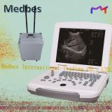 Laptop Black and white Ultrasound SYSTEM