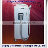 2013 laser tattoo removal slimming machine cavitation E-light+IPL+RF machine pomegranate peeling machine