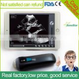 Sonostar Ipad ultrasound scanner wireless convex ultrasound Sector probe for pregnancy UProbe-1