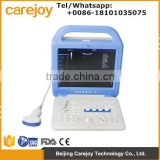 New Portable Full Digital Color Doppler Ultrasound Scanner Diagnostic System 2 Probe with cheap price