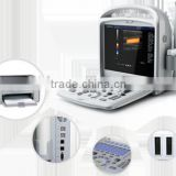Digital Portable Color Doppler Ultrasound System/Diagnostic System with CE                                                                         Quality Choice