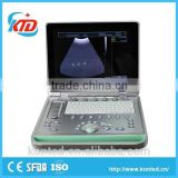 Hot Sale Full Digital Technology Ultrasound Scanner/ Echographe With Ce And Iso