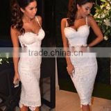 Hot 2015 Newest White Lace 2 Piece Set Knee Length Sexy Lady HL Bandage Dress Night Wear Celebrity Slim Dress