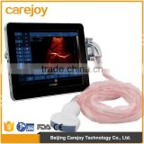 ISO CE aprroved Medical products New ipad 180 degree wide-angle scanning technology Handheld ipad Ultrasound Scanner