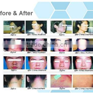Metal RF Co2 Fractional Laser Skin Care And Vaginal Treat