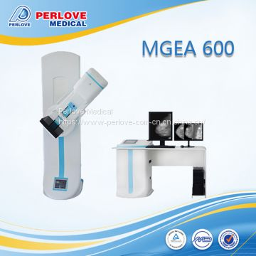 Cheapest mammography machine price MEGA 600