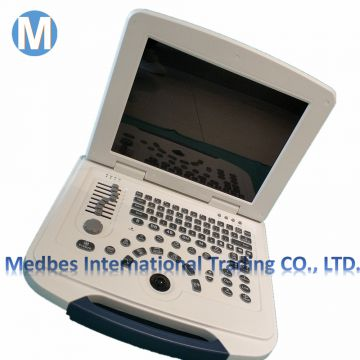 Clinic Portable Cardio Echo Ultrasound Scanner Doppler