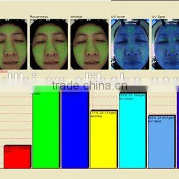 most effective skin test analyzer machine/portable spa or clinic use skin scanner analyzer