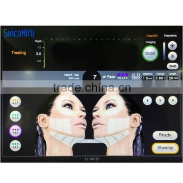 Hi Frequency Facial Machine Hips Shaping HIFU/high Intensity High High Frequency Galvanic Machine Frequency Machine For Acne Focused Ultrasound/hifu Machine Anti-aging Skin Tightening