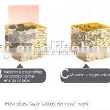 Laser Tattoo Removal Equipment Cheapest Price Tattoo Removal Varicose Veins Treatment Nd Yag Laser Machine Prices Telangiectasis Treatment