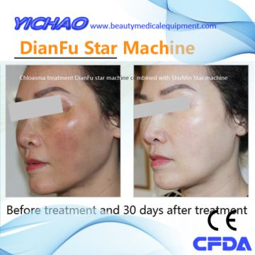 Beauty Medical Painless Skin Care Rejuvenation Private Acne Remove Machine